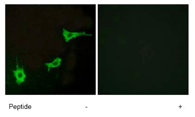 Immunocytochemistry/ Immunofluorescence - Anti-Endothelin A Receptor/ET-A antibody (ab76259)