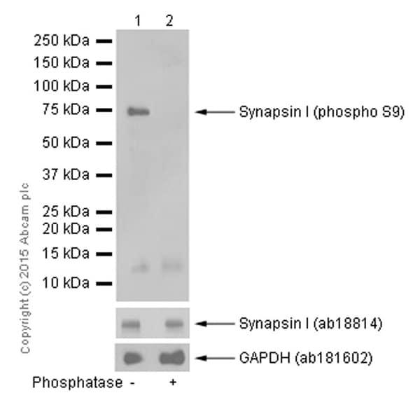 Western blot - Anti-Synapsin I (phospho S9) antibody [EP2162Y] (ab76260)