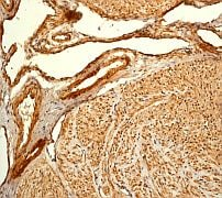 Immunohistochemistry (Formalin/PFA-fixed paraffin-embedded sections) - Anti-Filamin A antibody [EP2405Y] (ab76289)