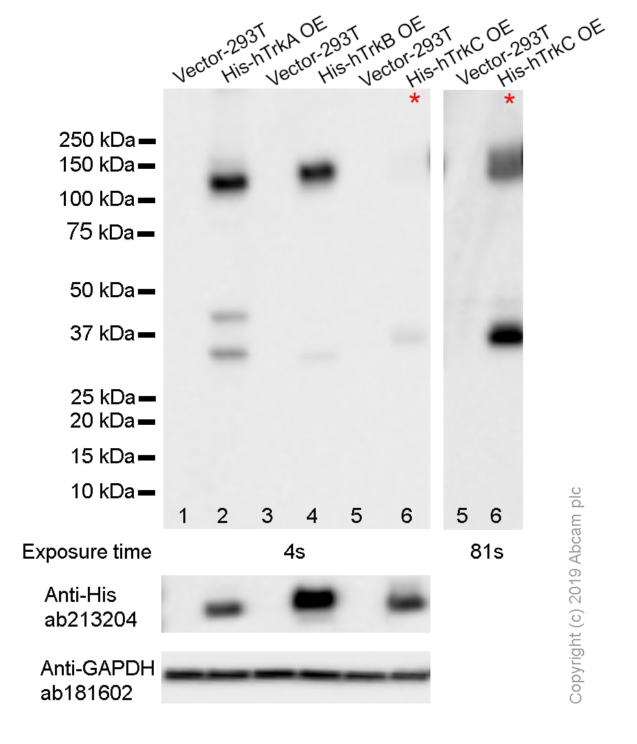 Western blot - Anti-Pan Trk antibody [EP1058Y] (ab76291)