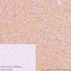 Immunohistochemistry (Formalin/PFA-fixed paraffin-embedded sections) - Anti-Pan Trk antibody [EP1058Y] (ab76291)