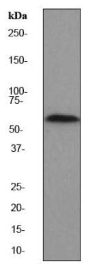 Western blot - Anti-PAK2 antibody [EP796Y] (ab76293)