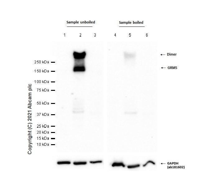 Western blot - Anti-Metabotropic Glutamate Receptor 5 antibody [EPR2425Y] (ab76316)