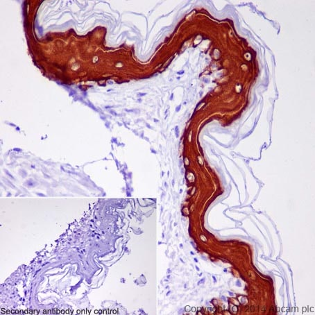 Immunohistochemistry (Formalin/PFA-fixed paraffin-embedded sections) - Anti-Cytokeratin 10 antibody [EP1607IHCY] - Cytoskeleton Marker (ab76318)