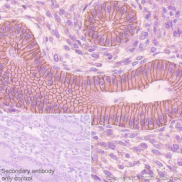 Immunohistochemistry paraffin embedded sections - Anti-E Cadherin (phospho S838 + S840) antibody [EP913(2)Y] (ab76319)