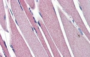 Immunohistochemistry (Formalin/PFA-fixed paraffin-embedded sections) - Anti-Hexokinase II antibody (ab76358)