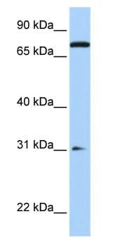 Western blot - Anti-MAP4K1 antibody (ab76379)