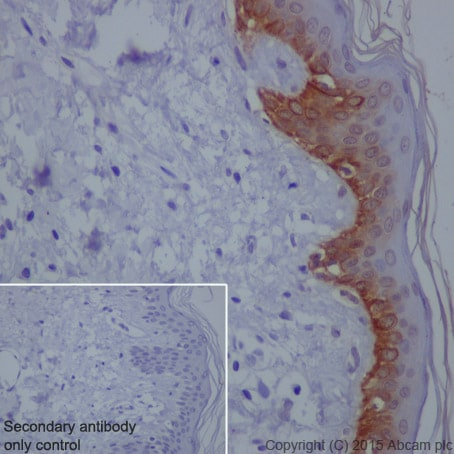 Immunohistochemistry (Formalin/PFA-fixed paraffin-embedded sections) - Anti-Cytokeratin 16/K16 antibody [EP1615Y] (ab76416)