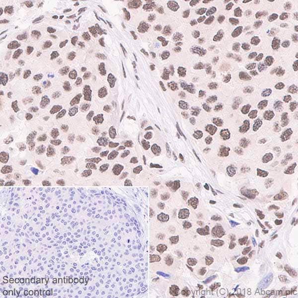 Immunohistochemistry (Formalin/PFA-fixed paraffin-embedded sections) - Anti-RPA32/RPA2 antibody [EPR2877Y] (ab76420)