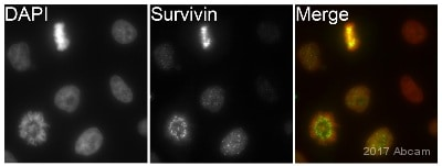 Immunocytochemistry/ Immunofluorescence - Anti-Survivin antibody [EP2880Y] (ab76424)