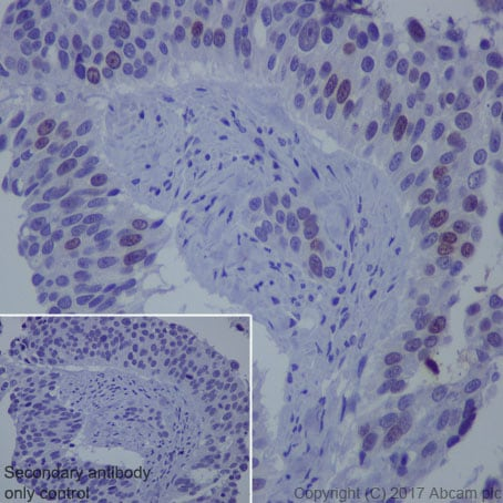 Immunohistochemistry (Formalin/PFA-fixed paraffin-embedded sections) - Anti-Survivin antibody [EP2880Y] (ab76424)