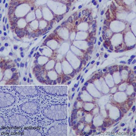 Immunohistochemistry (Formalin/PFA-fixed paraffin-embedded sections) - Anti-IKB alpha antibody [EP697] (ab76429)