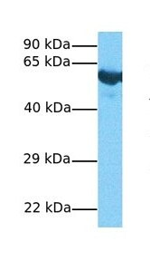 Western blot - Anti-PLD3 antibody (ab76433)