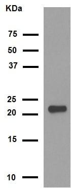 Western blot - Anti-Alpha B Crystallin antibody [EPR2752] (ab76467)