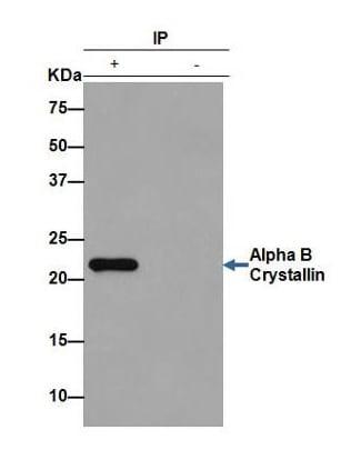 Immunoprecipitation - Anti-Alpha B Crystallin antibody [EPR2752] (ab76467)