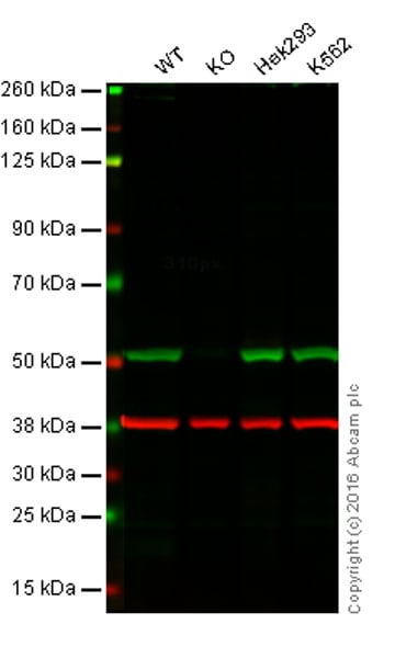 Western blot - Anti-Integrin linked ILK antibody [EPR1592] (ab76468)
