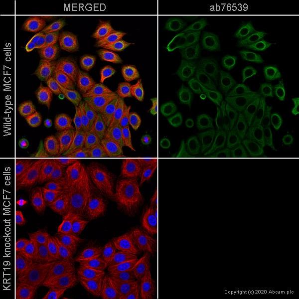 Immunocytochemistry/ Immunofluorescence - Anti-Cytokeratin 19 antibody [EPR1579Y] (ab76539)