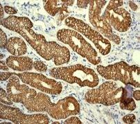 Immunohistochemistry (Formalin/PFA-fixed paraffin-embedded sections) - Anti-Cytokeratin 19 antibody [EPR1579Y] (ab76539)