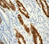 Immunohistochemistry (Formalin/PFA-fixed paraffin-embedded sections) - Anti-CDX2 antibody [EPR2764Y] (ab76541)