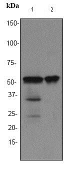 Western blot - Anti-TdT antibody [EPR2976Y] (ab76544)