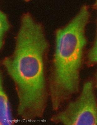 Immunocytochemistry/ Immunofluorescence - Anti-Glucose 6 Phosphate Dehydrogenase antibody (ab76598)