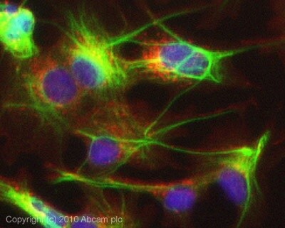 Immunocytochemistry/ Immunofluorescence - Anti-ALIX antibody (ab76608)