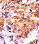 Immunohistochemistry (Formalin/PFA-fixed paraffin-embedded sections) - Anti-PKM2 antibody - C-terminal (ab76695)