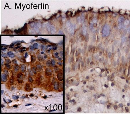 Immunohistochemistry (Formalin/PFA-fixed paraffin-embedded sections) - Anti-Myoferlin antibody [7D2] (ab76746)