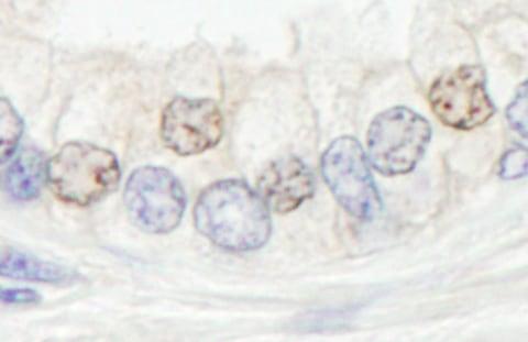 Immunohistochemistry (Formalin/PFA-fixed paraffin-embedded sections) - Anti-XPF antibody (ab76948)