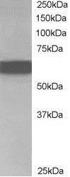Western blot - Anti-CDT1/DUP antibody (ab77091)