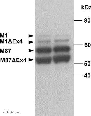 Western blot - Anti-Spastin antibody [Sp 6C6] (ab77144)