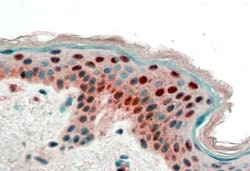Immunohistochemistry (Formalin/PFA-fixed paraffin-embedded sections) - Anti-14-3-3 sigma antibody (ab77187)