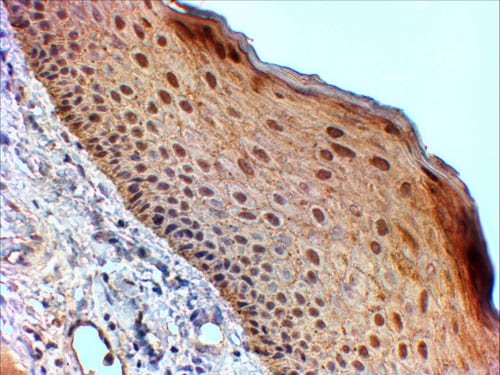 Immunohistochemistry (Formalin/PFA-fixed paraffin-embedded sections) - Anti-14-3-3 sigma/SFN antibody (ab77187)