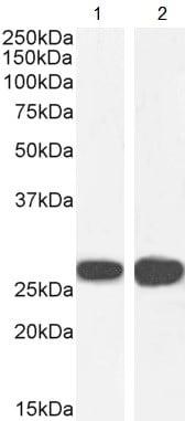 Western blot - Anti-14-3-3 sigma/SFN antibody (ab77187)