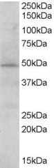 Western blot - Anti-STAP2 antibody (ab77191)