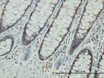 Immunohistochemistry (Formalin/PFA-fixed paraffin-embedded sections) - CLIC1 antibody (ab77214)