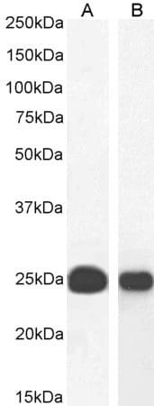 Western blot - Anti-HP1 alpha antibody (ab77256)