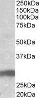 Western blot - Anti-B7H4 antibody (ab77281)