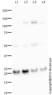 Western blot - Anti-CSN8 antibody (ab77300)