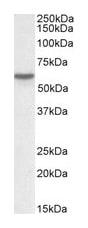 Western blot - Anti-Vitamin D Binding protein antibody (ab77357)
