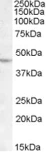 Western blot - Anti-Lhx2/LH2 antibody (ab77368)