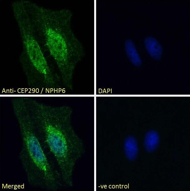 Immunocytochemistry/ Immunofluorescence - Anti-CEP290 antibody (ab77479)