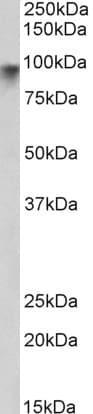 Western blot - Anti-Neuroligin 2 antibody (ab77595)