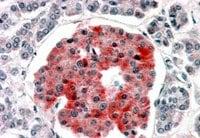 Immunohistochemistry (Formalin/PFA-fixed paraffin-embedded sections) - Anti-Kir6.2/BIR antibody (ab77637)