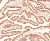Immunohistochemistry (Formalin/PFA-fixed paraffin-embedded sections) - Anti-Trophinin antibody [3-11] (ab78117)