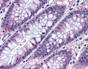 Immunohistochemistry (Formalin/PFA-fixed paraffin-embedded sections) - Anti-MTSS1 antibody (ab78161)
