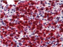Immunohistochemistry (Formalin/PFA-fixed paraffin-embedded sections) - Anti-CDA antibody (ab78231)