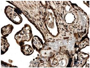 Immunohistochemistry (Formalin/PFA-fixed paraffin-embedded sections) - Anti-Activin Receptor Type IA antibody [MM0052-9J17] (ab78414)