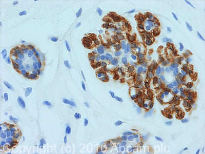 Immunohistochemistry (Formalin/PFA-fixed paraffin-embedded sections) - Anti-Calponin antibody (ab78491)
