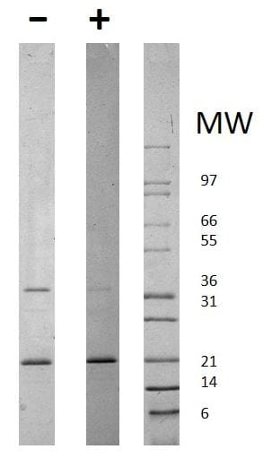 SDS-PAGE - Recombinant human Adiponectin protein (ab78588)